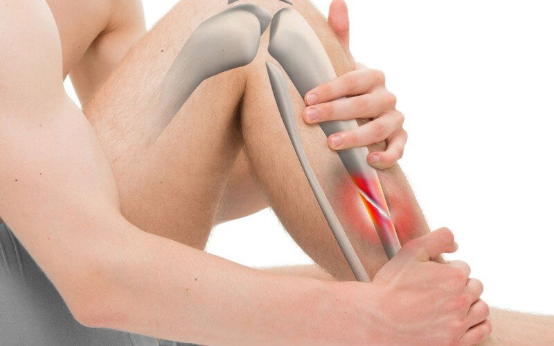Failing Kidney Function Linked to Risk of Osteoporosis-Related Fractures