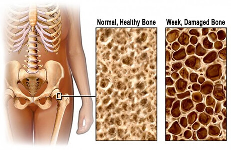 Bone Mineral Health Could Also Help Support Your Kidneys